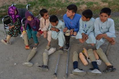 Niños mutilados por bombardeos de EE.UU.